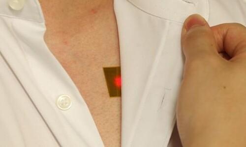 빛으로 몸속 의료기기 충전한다