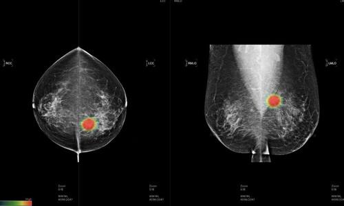국내 의료 인공지능, 유방암 진단서 전문의 앞섰다