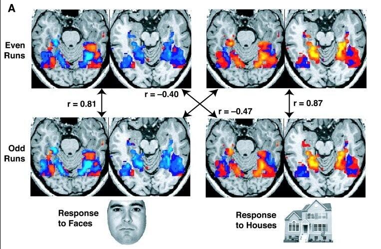 뇌자기공명영상 사진들. 실험 데이터와는 관련 없음. 위키미디어 코먼스