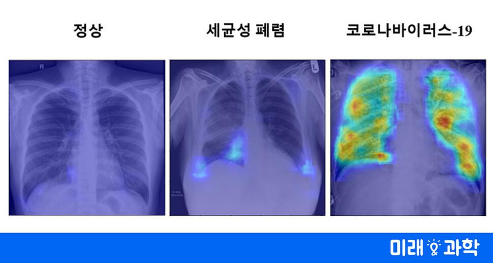 엑스레이 사진만으로도 '코로나19' 정확한 진단